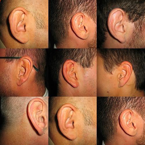 oreille,ouïe,orl,écouter,entendre,acoustique